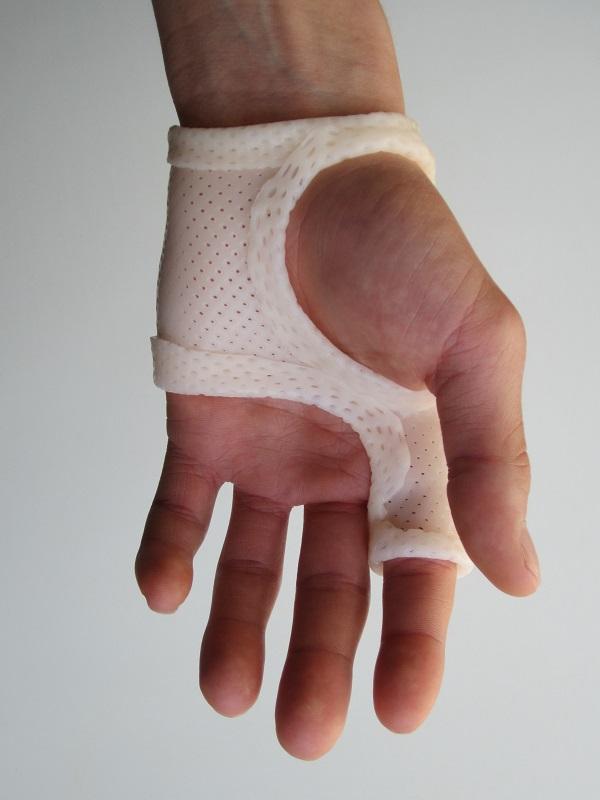 fracture métacarpe